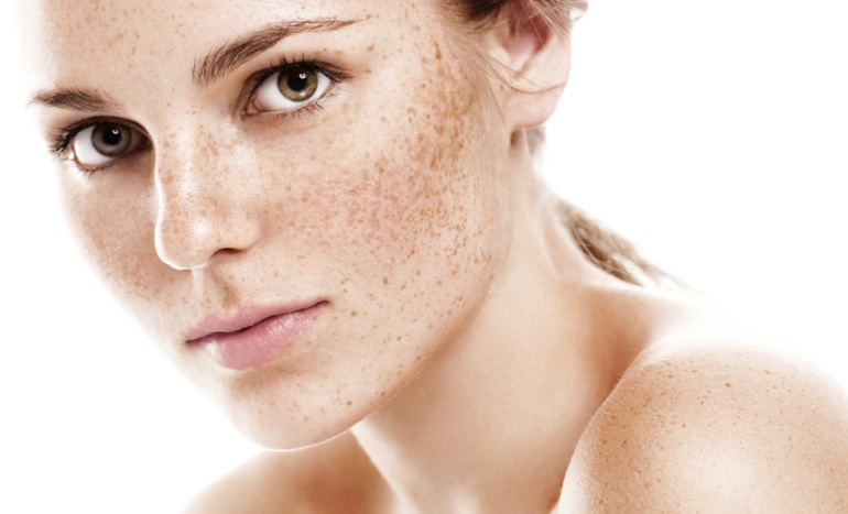 Melasma Treatment Brisbane North