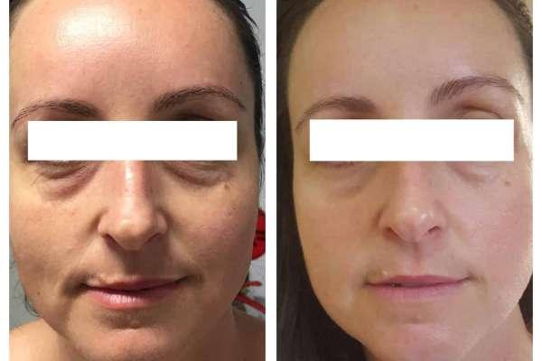 Twinlight skin resurfacing - Final