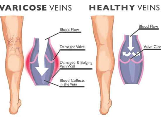 Normal Vein vs Varicose Veins