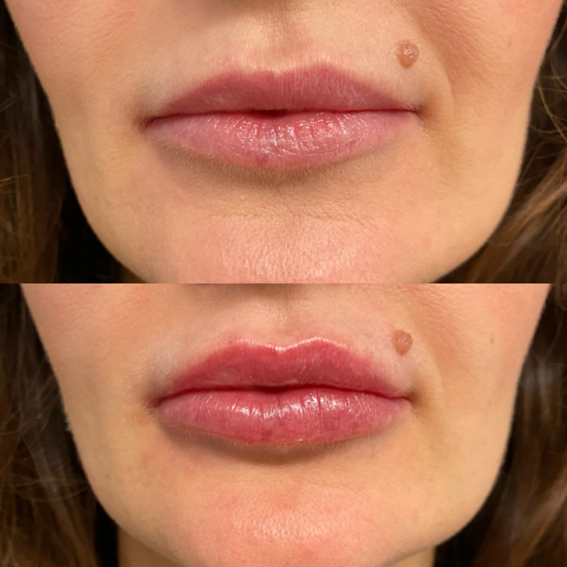 CoolSculpting Brisbane before and after results - About Face Brisbane